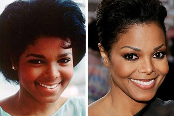 Celebrities Before And After A Surgery Took Place To