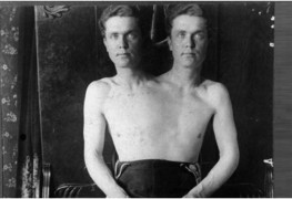The Two-Headed Man