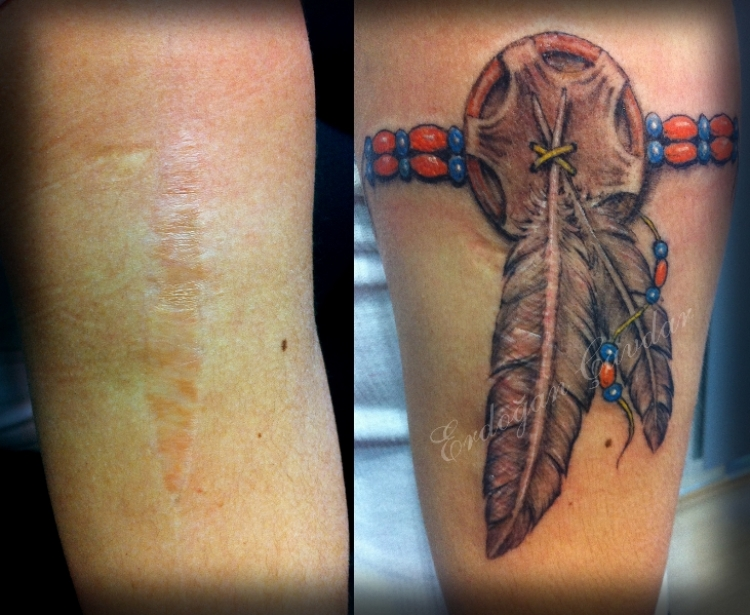 23 people that turned their scars into stunning body art for Scar tattoo cover up