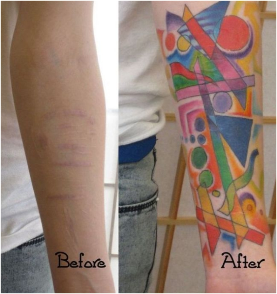scars_cover_up_03